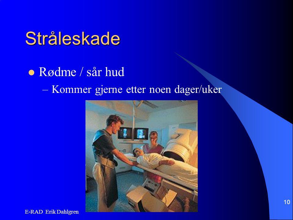 E-RAD Erik Dahlgren 10 Stråleskade Rødme / sår hud –Kommer gjerne etter noen dager/uker