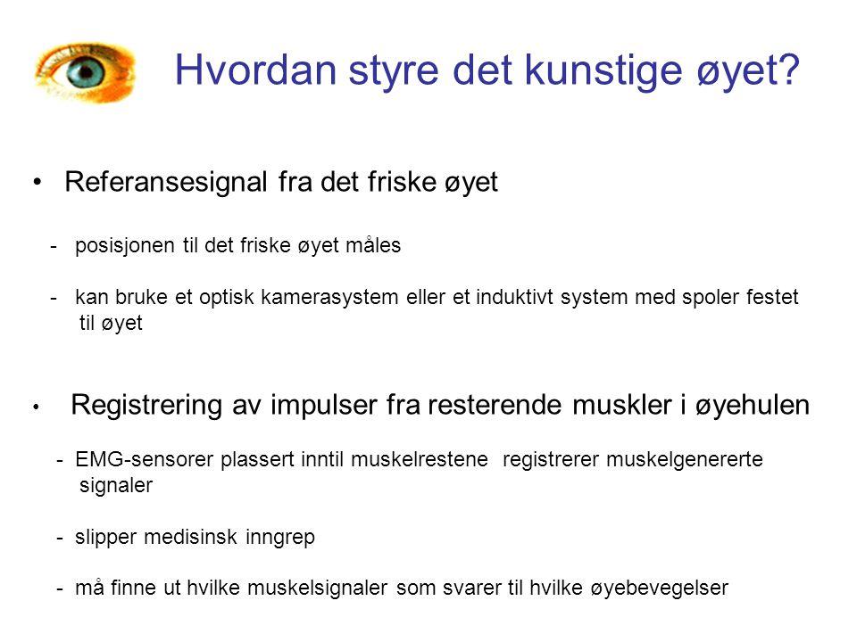 Hvordan styre det kunstige øyet? Referansesignal fra det friske øyet - posisjonen til det friske øyet måles - kan bruke et optisk kamerasystem eller e