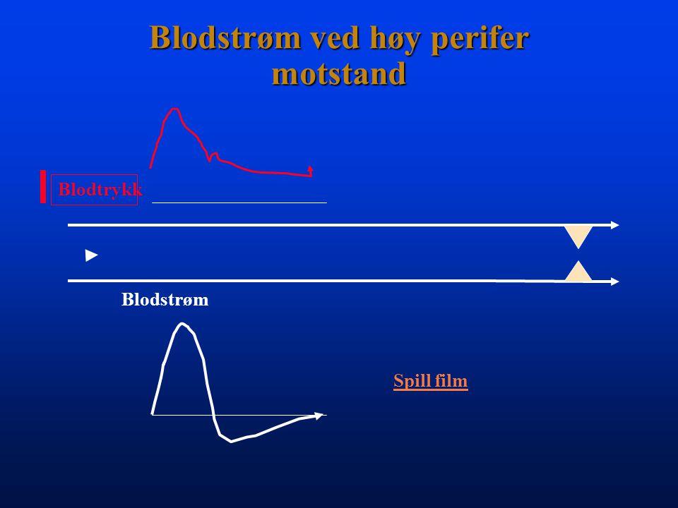 Blodstrøm ved høy perifer motstand Blodtrykk Blodstrøm Spill film