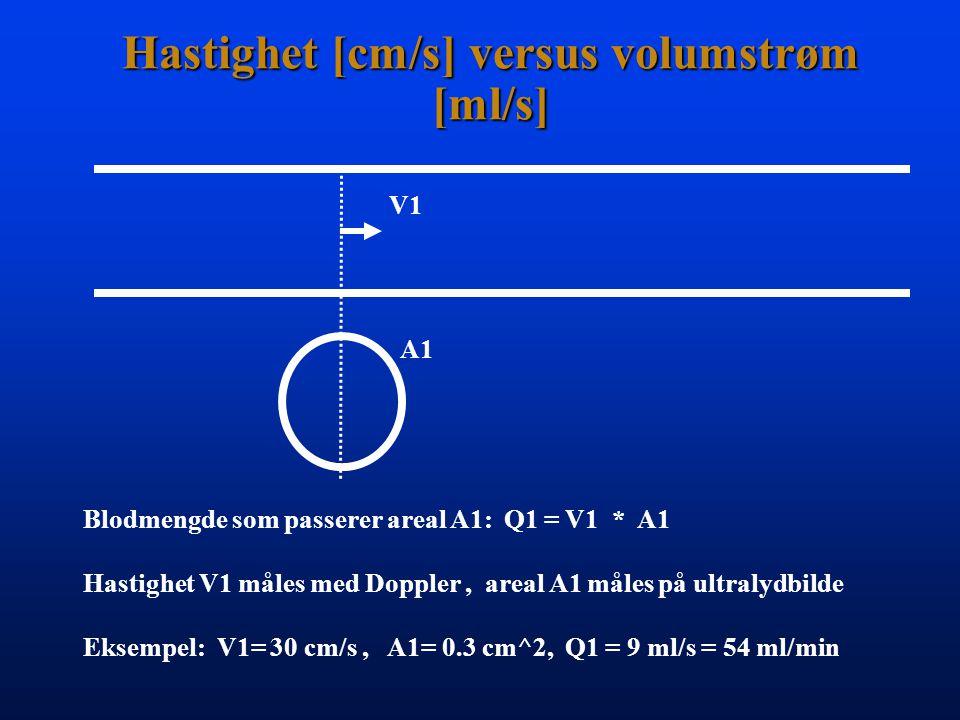 Kontinuitet ved stenose V1V2 A1 A2 V1 * A1 = V2 * A2 Stenose - grad: A1 - A2 = V2 - V1 A1 V2 Eksempel: 5x hastighetsøkning tilsvarer 80% stenose Merk.