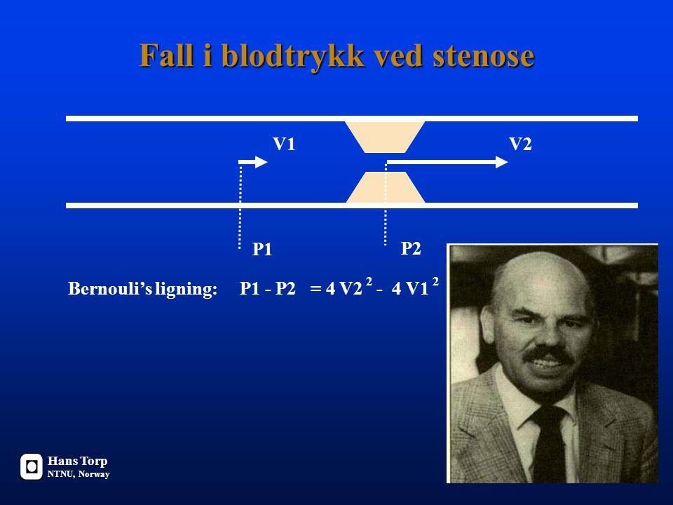 Fall i blodtrykk ved stenose V1V2 P1 P2 Bernouli's ligning: P1 - P2 = 4 V2 - 4 V1 22 V [m/s] P [mmHg] Hans Torp NTNU, Norway