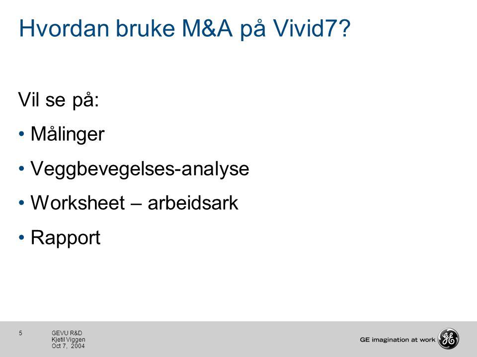 5 GEVU R&D Kjetil Viggen Oct 7, 2004 Hvordan bruke M&A på Vivid7.