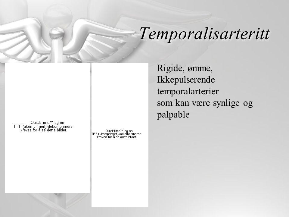 Temporalisarteritt Rigide, ømme, Ikkepulserende temporalarterier som kan være synlige og palpable