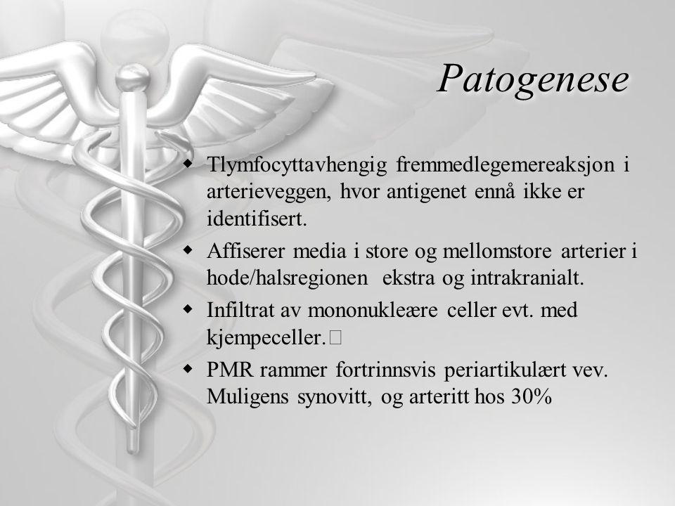 Fellstrekk ved forskjellige definisjoner av PMR 1.Minst en måneds plager med smerter og morgenstivhet i minst 2 av 3 grupper muskulatur (skulderbue, hoftebue, nakke) 2.Tegn på systemsykdom (SR>40) 3.Hurtig respons på små doser steroider (prednison 10 mg daglig) 4.Tilstedeværelse av RA, kronisk infeksjon, polymyositt eller malignitet utelukker diagnosen