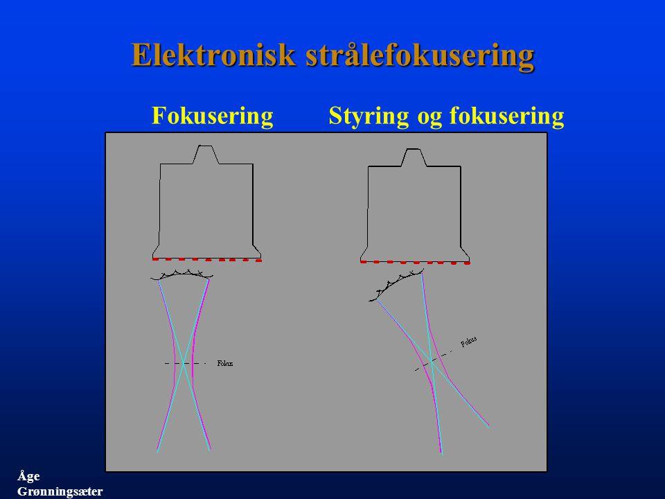 1986 CFM 700 5 kanaler Mekanisk scanning 1996 System Five 128 kanaler Elektronisk scanning Mekanisk scanning 2000 Vivid 7 128 kanaler Elektronisk scanning