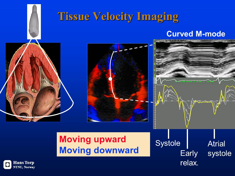 Color Doppler velocity imaging PW Doppler: Velocity from one point Color flow imaging: Velocities in the whole image Color M-mode: Velocities along a