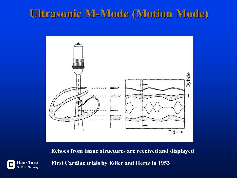 L cf Mannsstemme: ~ 1 - 2 meter 330 m/s (luft) 165 - 330 Hz Damestemme: ~ 0.5 - 1 meter 330 m/s (luft) 330 - 660 Hz Medisinsk Ultralyd: 0.1 - 1 mm 1540 m/s (bløtt vev) 1.5 - 15 MHz Utsendt lydfelt påvirkes av lydkildens størrelse og bølgelengden