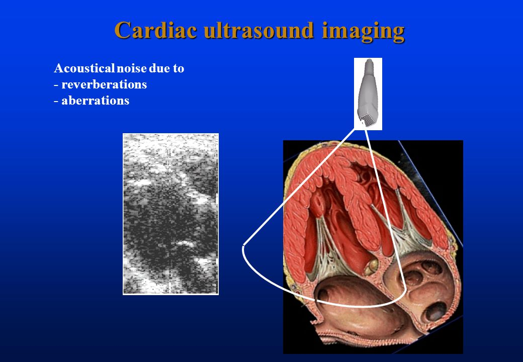 Cardiac ultrasound imaging Acoustical noise due to - reverberations - aberrations