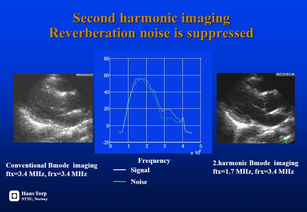Second harmonic imaging Reverberation noise is suppressed Conventional Bmode imaging ftx=3.4 MHz, frx=3.4 MHz 2.harmonic Bmode imaging ftx=1.7 MHz, fr
