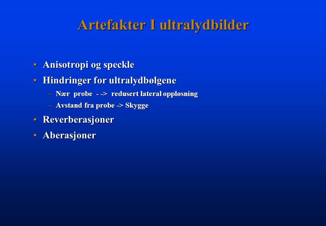 Artefakter I ultralydbilder Anisotropi og speckleAnisotropi og speckle Hindringer for ultralydbølgeneHindringer for ultralydbølgene –Nær probe - -> re