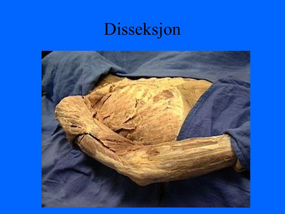Disseksjon