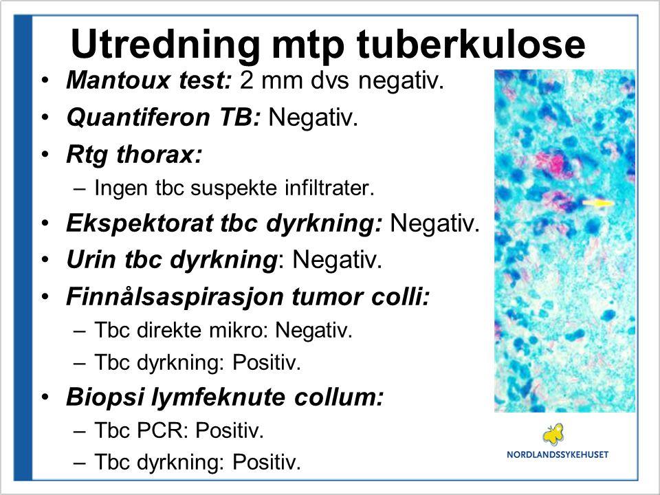 Utredning mtp tuberkulose Mantoux test: 2 mm dvs negativ. Quantiferon TB: Negativ. Rtg thorax: –Ingen tbc suspekte infiltrater. Ekspektorat tbc dyrkni