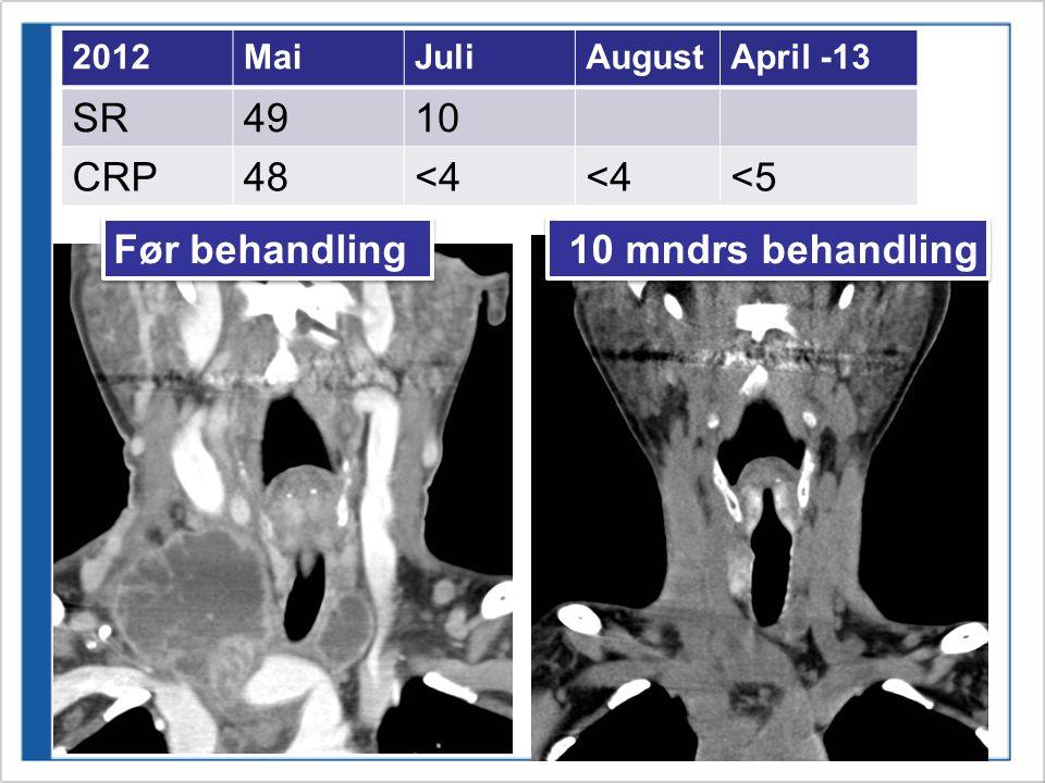 2012MaiJuliAugustApril -13 SR4910 CRP48<4 <5 Før behandling 10 mndrs behandling
