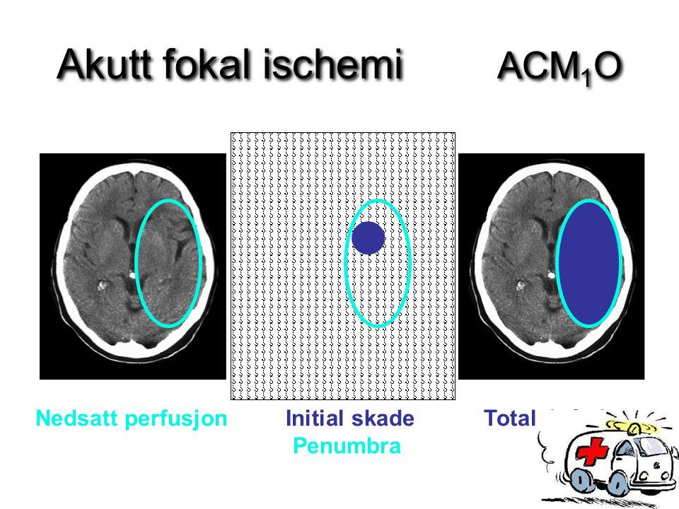 Akutt fokal ischemi ACM 1 O Nedsatt perfusjon Initial skade Totalt infarkt Penumbra