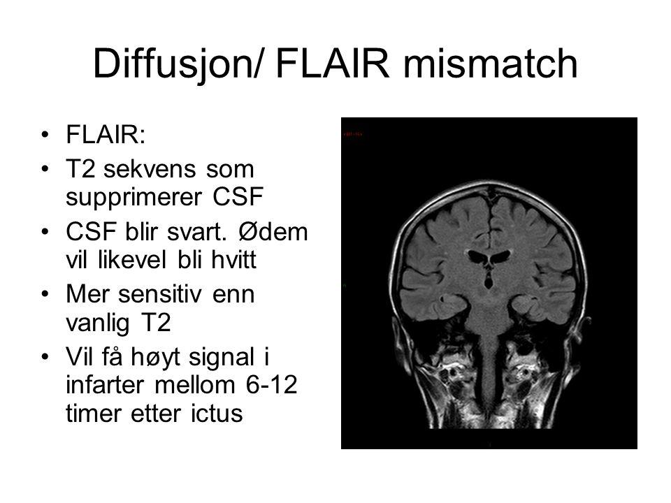 Diffusjon/ FLAIR mismatch FLAIR: T2 sekvens som supprimerer CSF CSF blir svart. Ødem vil likevel bli hvitt Mer sensitiv enn vanlig T2 Vil få høyt sign