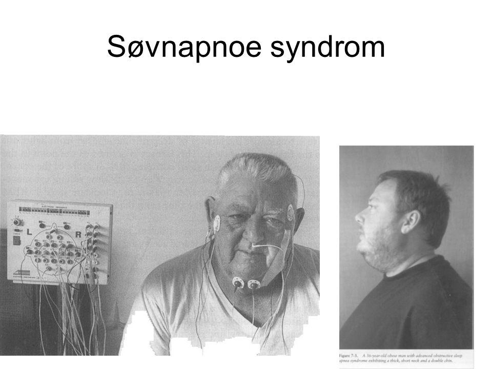 Søvnapnoe syndrom