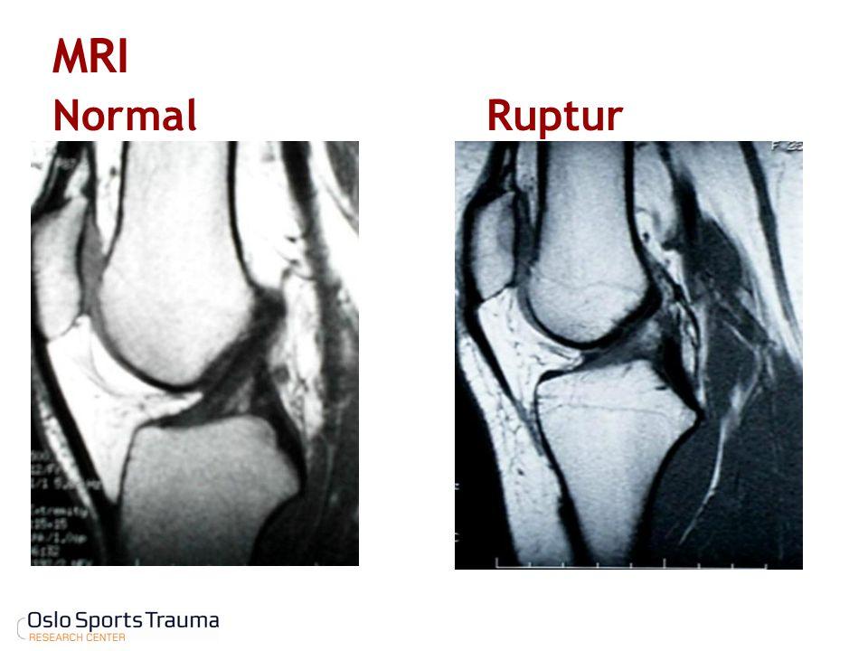 MRI NormalRuptur
