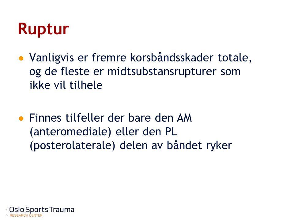 Ruptur Vanligvis er fremre korsbåndsskader totale, og de fleste er midtsubstansrupturer som ikke vil tilhele Finnes tilfeller der bare den AM (anterom