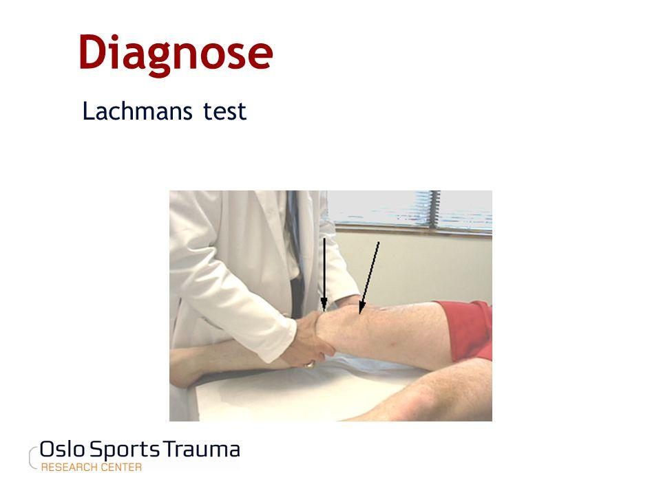 Diagnose Lachmans test