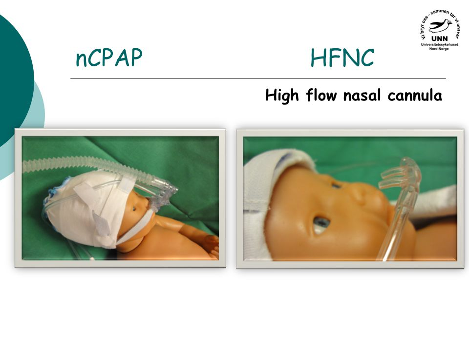 nCPAPHFNC High flow nasal cannula