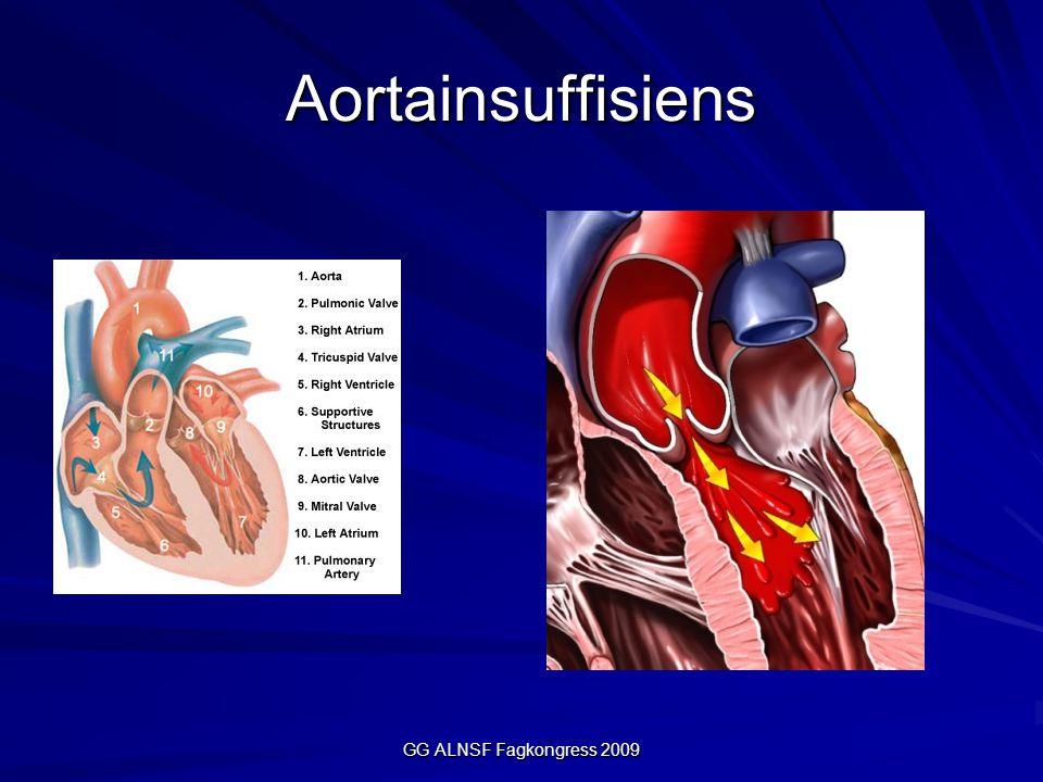 Aortainsuffisiens