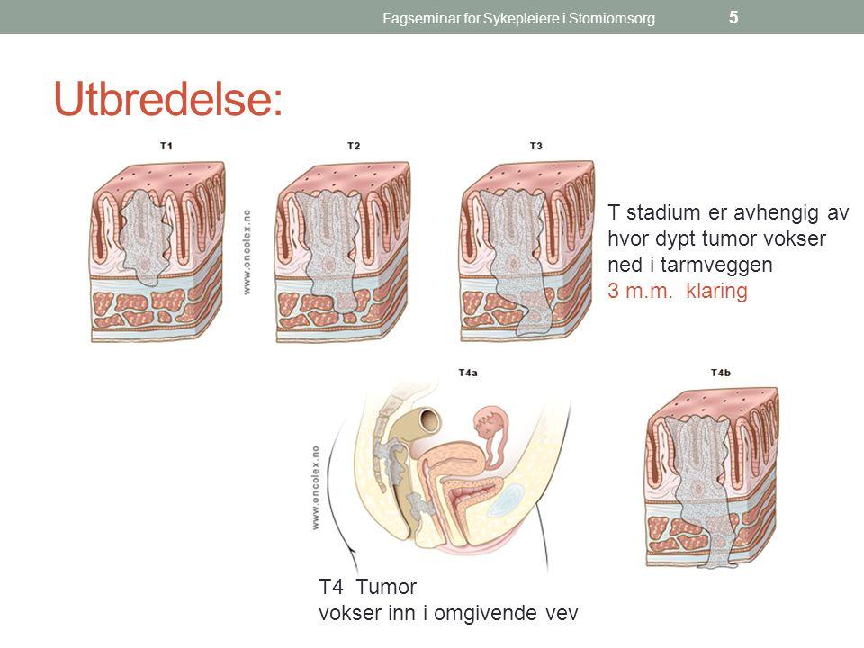 Fagseminar for Sykepleiere i Stomiomsorg 5 Utbredelse: T4 Tumor vokser inn i omgivende vev T stadium er avhengig av hvor dypt tumor vokser ned i tarmv