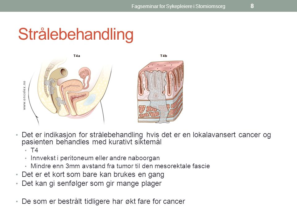 Fagseminar for Sykepleiere i Stomiomsorg 8 Strålebehandling Det er indikasjon for strålebehandling hvis det er en lokalavansert cancer og pasienten be