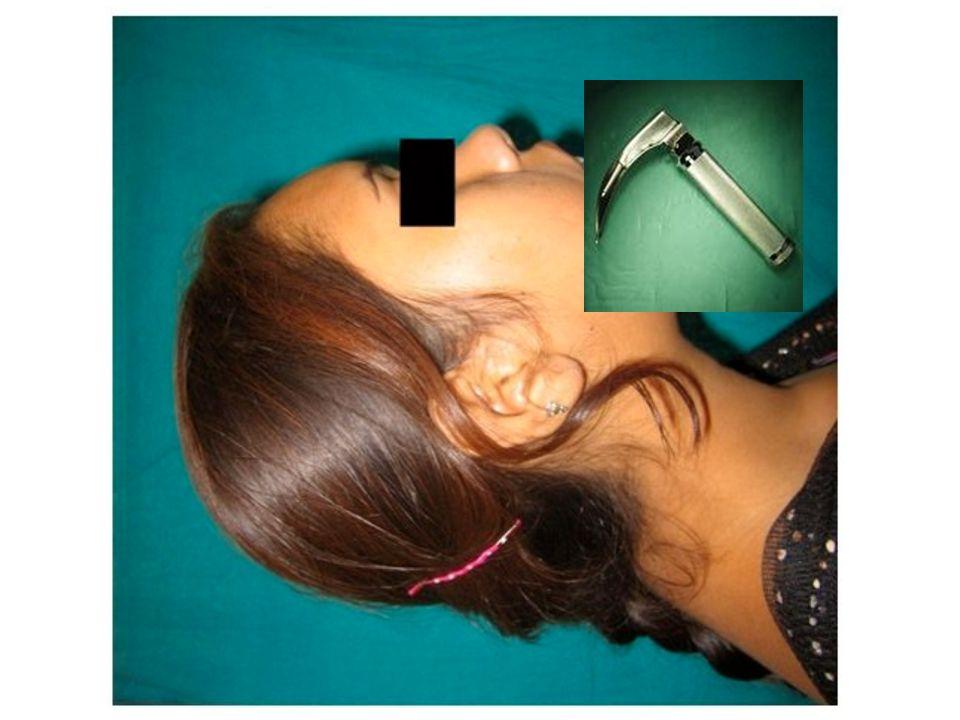 Preoperativ vurdering Gapeevne (Mallapati) Ansiktsform Nakkebevegelighet Kort nakke Thyromental avstand (> 6 cm, 3 fingre) Thyrosternal avstand (> 6 cm, 3 fingre) Bevegelighet kjeve