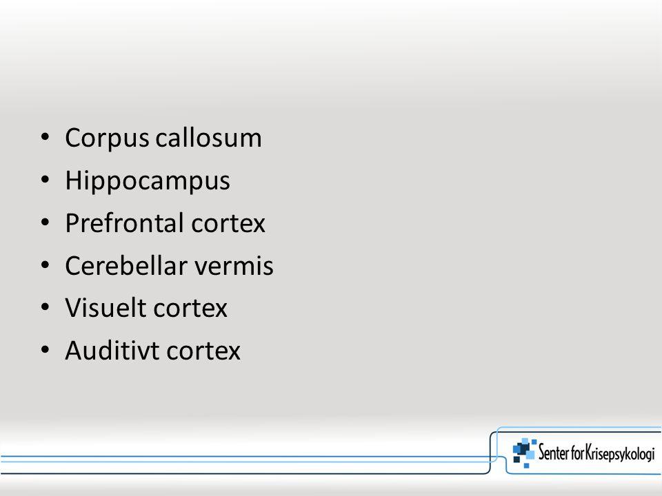 Corpus callosum Hippocampus Prefrontal cortex Cerebellar vermis Visuelt cortex Auditivt cortex