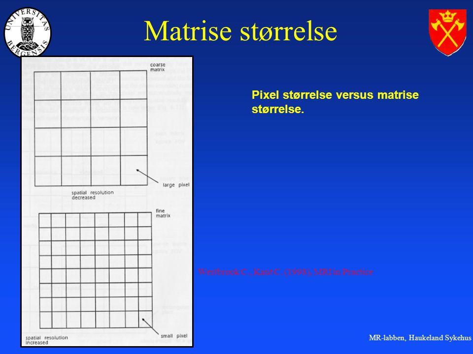 MR-labben, Haukeland Sykehus Matrise størrelse Pixel størrelse versus matrise størrelse.