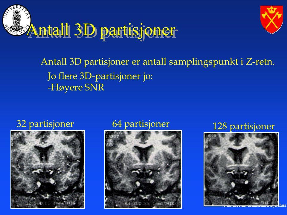 MR-labben, Haukeland Sykehus Antall 3D partisjoner 32 partisjoner64 partisjoner 128 partisjoner Antall 3D partisjoner er antall samplingspunkt i Z-retn.