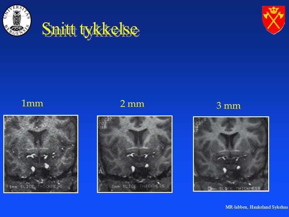MR-labben, Haukeland Sykehus Snitt tykkelse 1mm 2 mm 3 mm