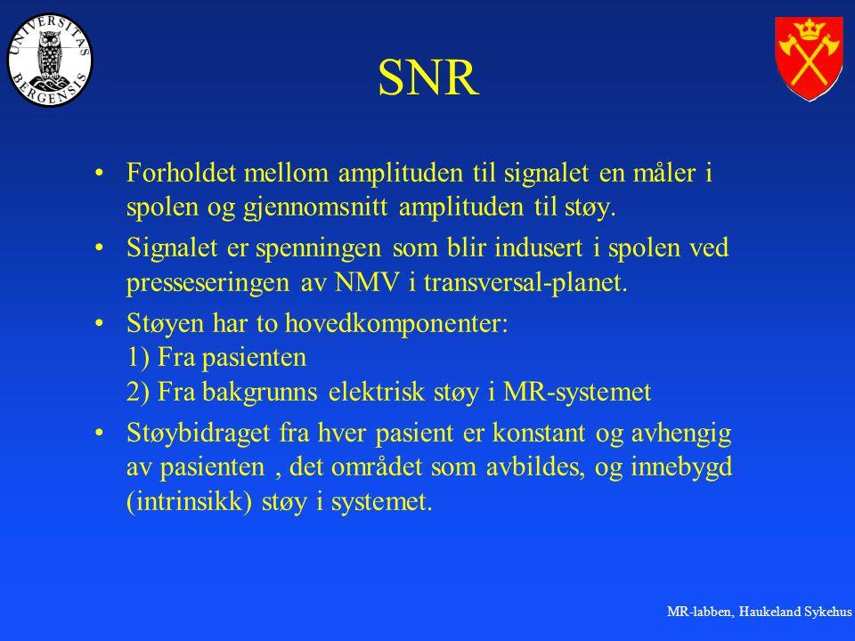 MR-labben, Haukeland Sykehus SNR Forholdet mellom amplituden til signalet en måler i spolen og gjennomsnitt amplituden til støy.