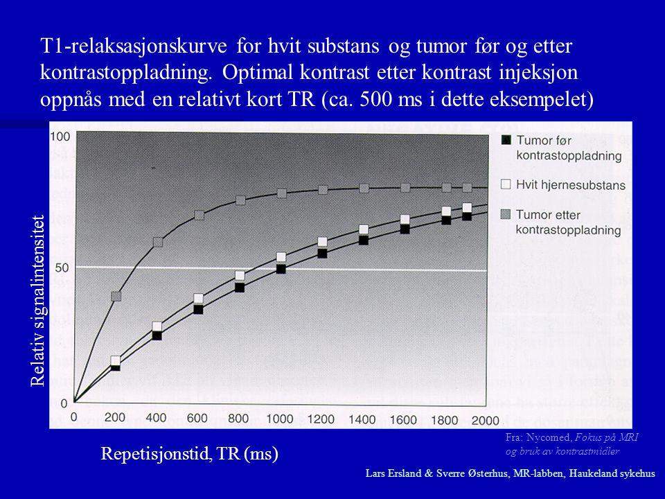 T1-relaksasjonskurve for hvit substans og tumor før og etter kontrastoppladning. Optimal kontrast etter kontrast injeksjon oppnås med en relativt kort