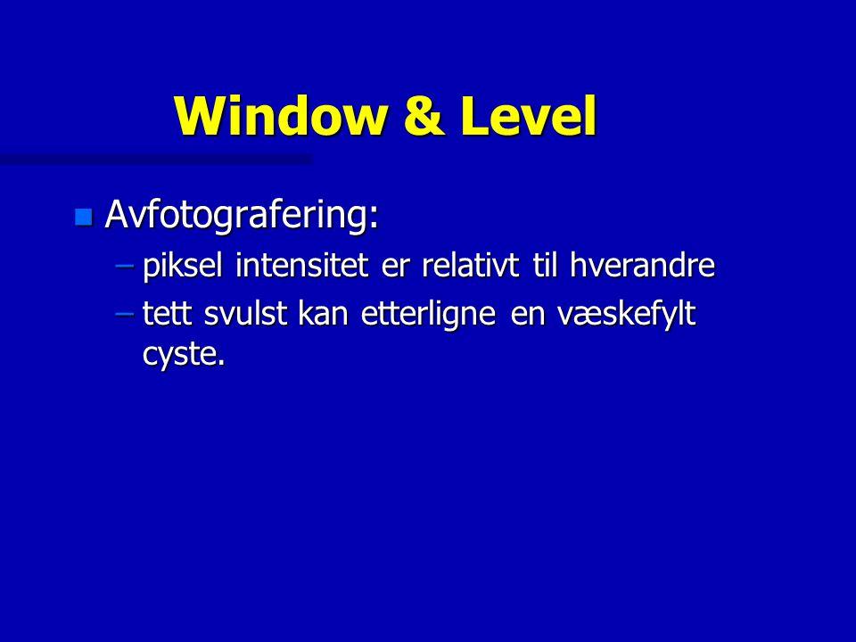 Window & Level n Avfotografering: –piksel intensitet er relativt til hverandre –tett svulst kan etterligne en væskefylt cyste.