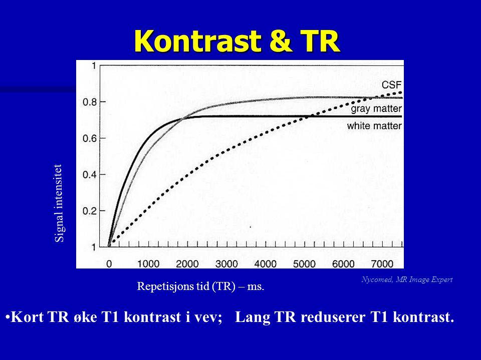 Kontrast & TR Repetisjons tid (TR) – ms. Nycomed, MR Image Expert Signal intensitet Kort TR øke T1 kontrast i vev; Lang TR reduserer T1 kontrast.