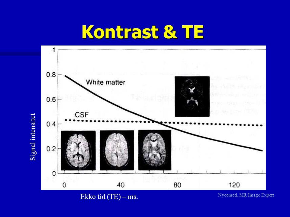 Kontrast & TE Nycomed, MR Image Expert Ekko tid (TE) – ms. Signal intensitet