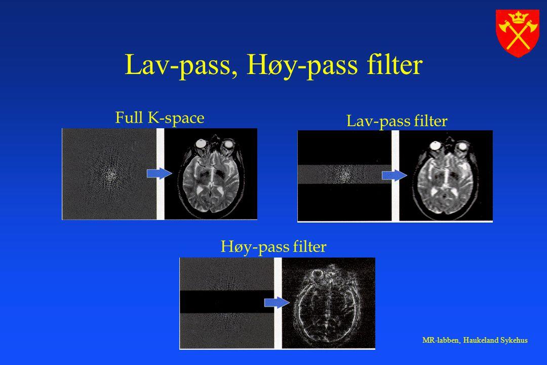 MR-labben, Haukeland Sykehus Full K-space Lav-pass filter Høy-pass filter Lav-pass, Høy-pass filter
