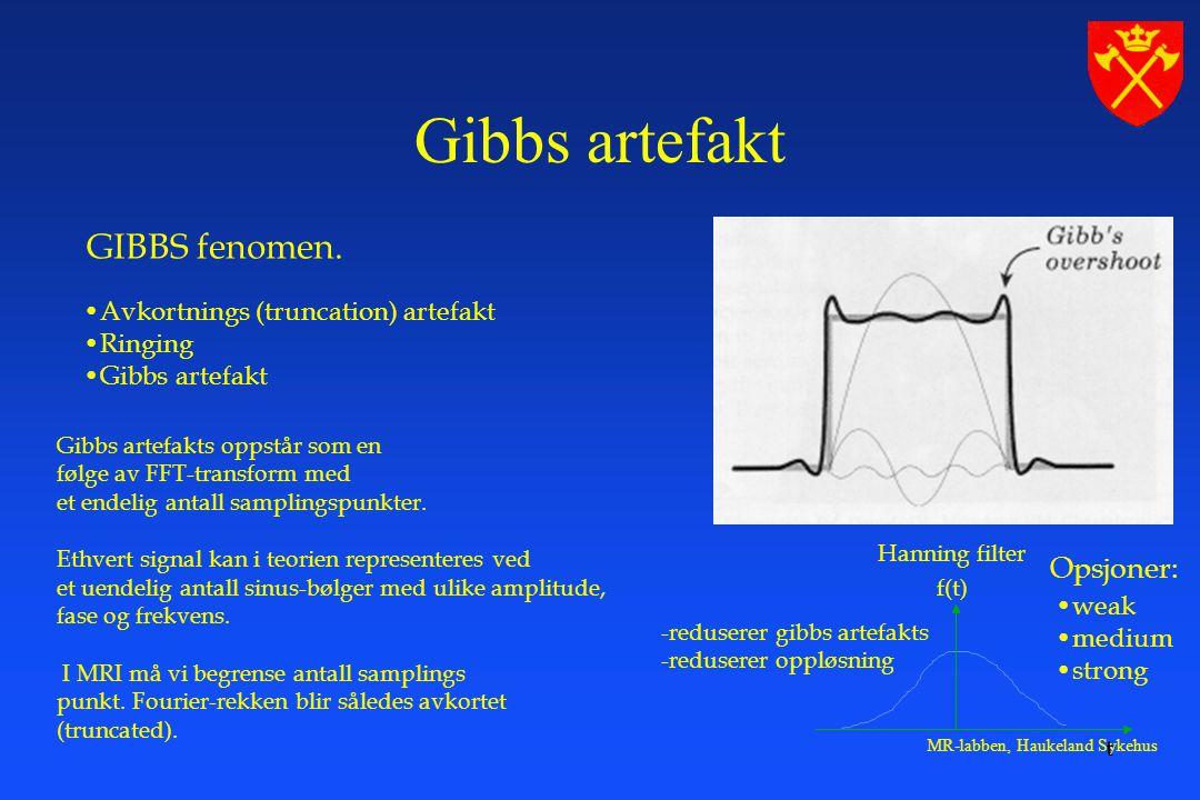 MR-labben, Haukeland Sykehus GIBBS fenomen.