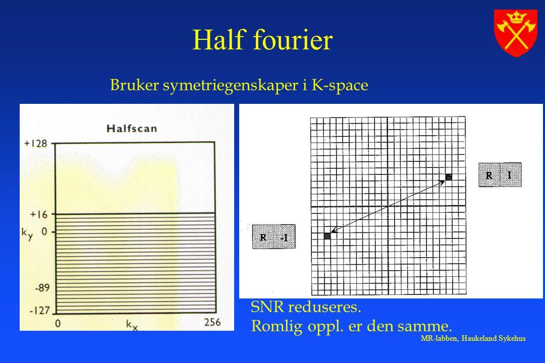 MR-labben, Haukeland Sykehus Bruker symetriegenskaper i K-space SNR reduseres.