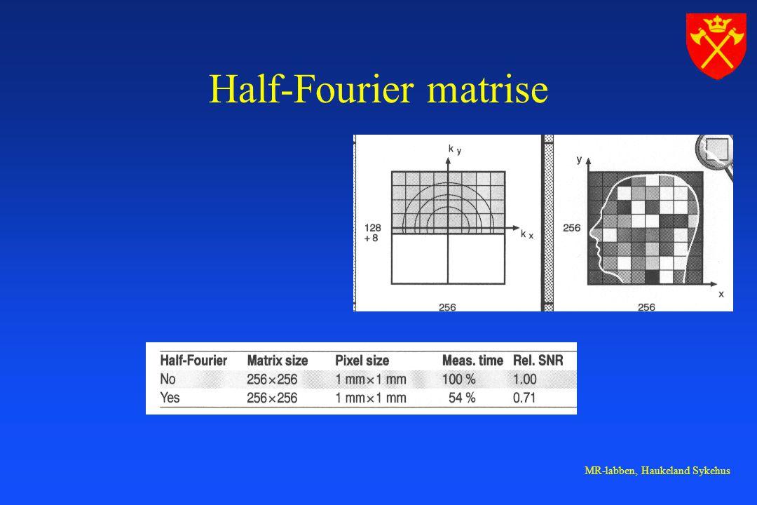 MR-labben, Haukeland Sykehus Half-Fourier matrise