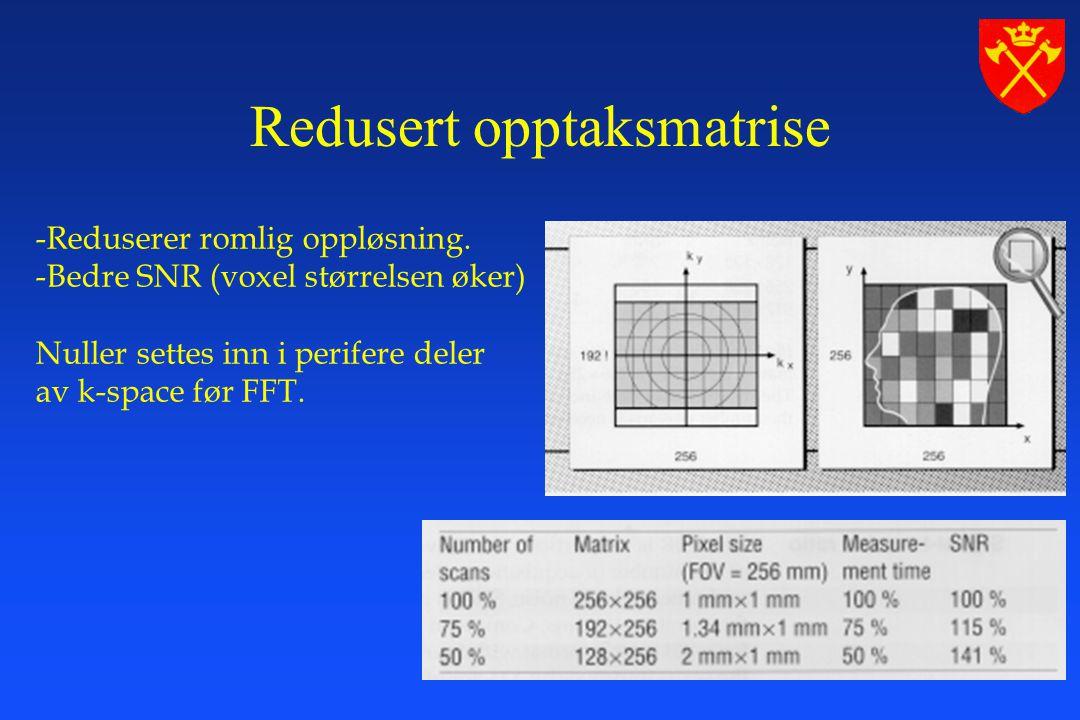 MR-labben, Haukeland Sykehus -Reduserer romlig oppløsning.