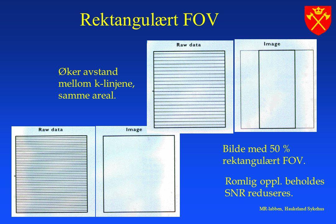 MR-labben, Haukeland Sykehus Bilde med 50 % rektangulært FOV.