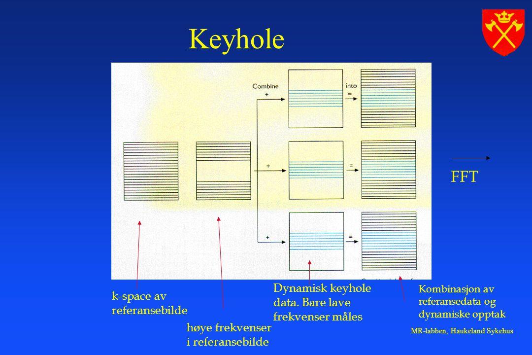 MR-labben, Haukeland Sykehus k-space av referansebilde høye frekvenser i referansebilde Dynamisk keyhole data.