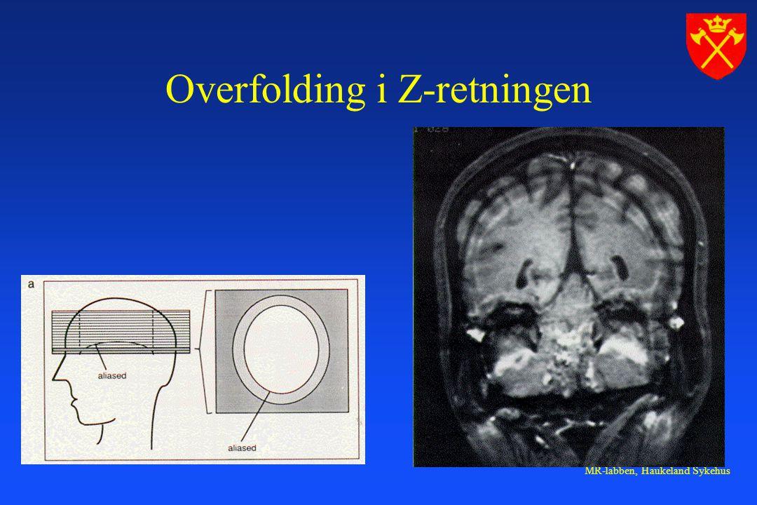 MR-labben, Haukeland Sykehus Overfolding i Z-retningen