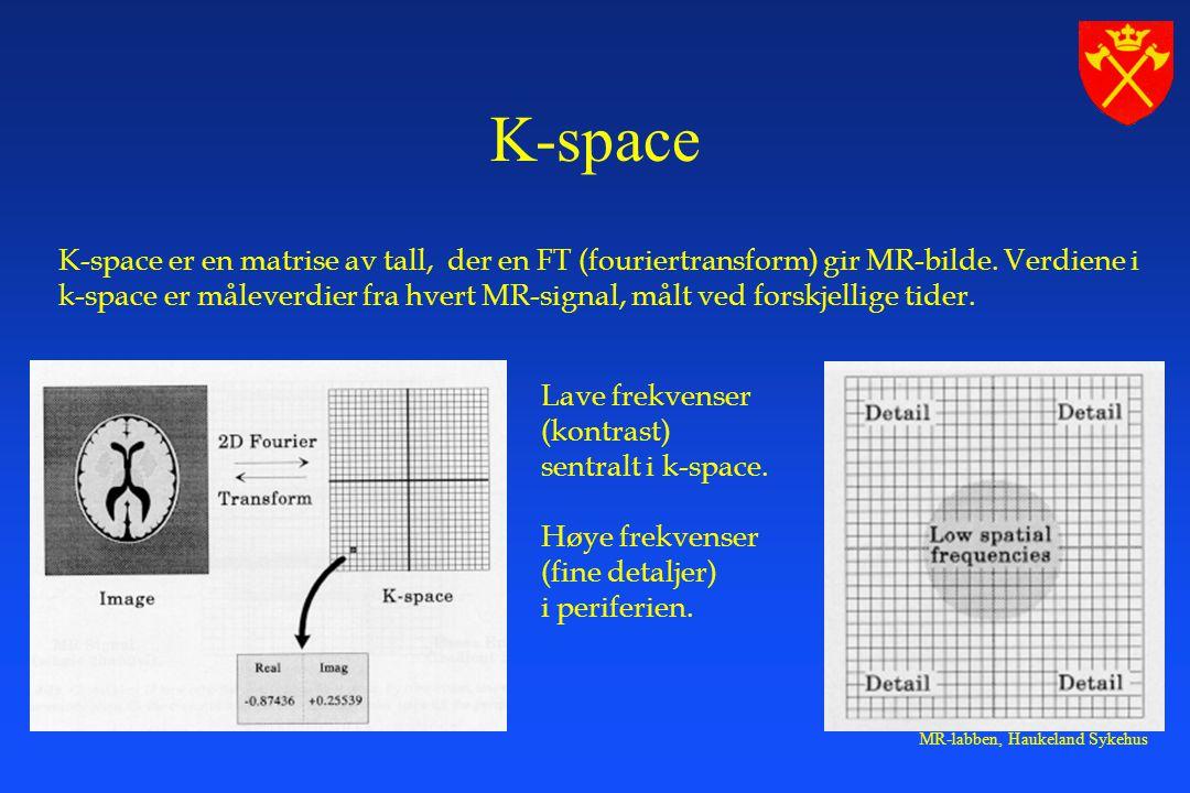 MR-labben, Haukeland Sykehus K-space er en matrise av tall, der en FT (fouriertransform) gir MR-bilde.