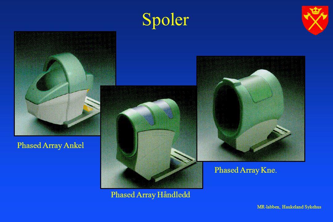 Spoler Phased Array Ankel Phased Array Håndledd Phased Array Kne.