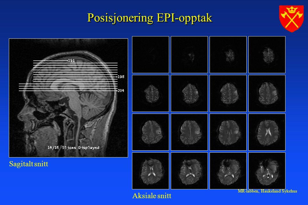MR-labben, Haukeland Sykehus Posisjonering EPI-opptak Sagitalt snitt Aksiale snitt