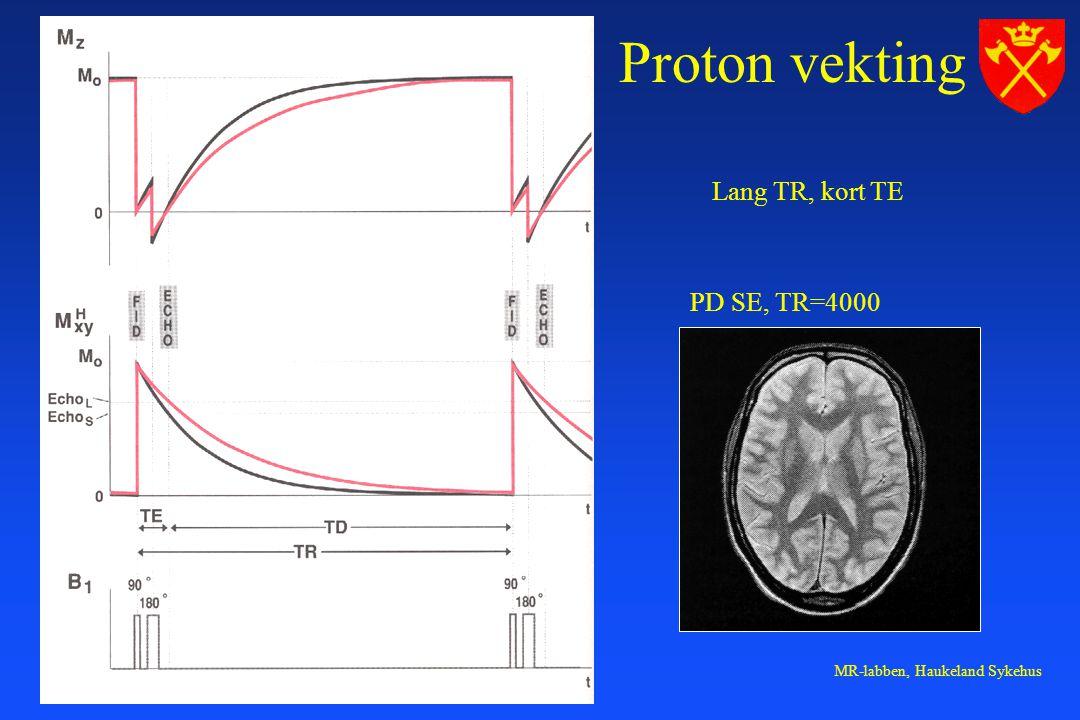 MR-labben, Haukeland Sykehus Proton vekting Lang TR, kort TE PD SE, TR=4000