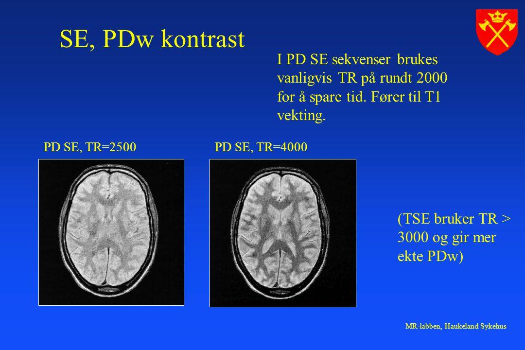 MR-labben, Haukeland Sykehus SE, PDw kontrast PD SE, TR=2500PD SE, TR=4000 I PD SE sekvenser brukes vanligvis TR på rundt 2000 for å spare tid. Fører